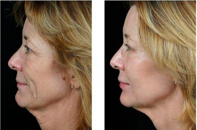 microneedle for wrinkle removal